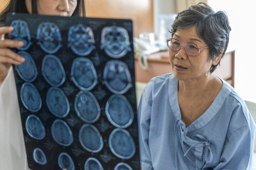 Doctor diagnosing elderly patient with neurodegenerative illness problem seeing Magnetic Resonance Imaging (MRI) film